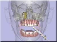 Medical animation of local anesthesia in dentistry